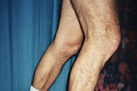 My Father's Legs by Sara Perovic